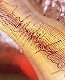 Draadloze pacemaker