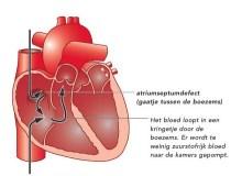 https://www.google.nl/search?q=congenital+heart+disease&client=safari&rls=en&source=lnms&tbm=isch&sa=X&ved=0ahUKEwjSydrQ39nMAhWDuhQKHdK8BlwQ_AUIBygB&biw=1728&bih=1135