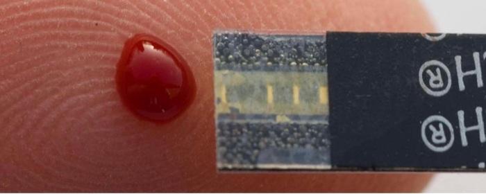 sensor ontdekt vitamine B12 tekort