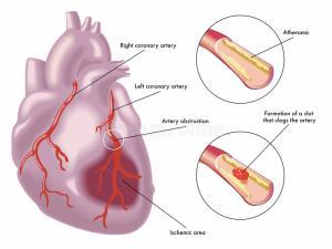 hartfalen door bloedprop in hart